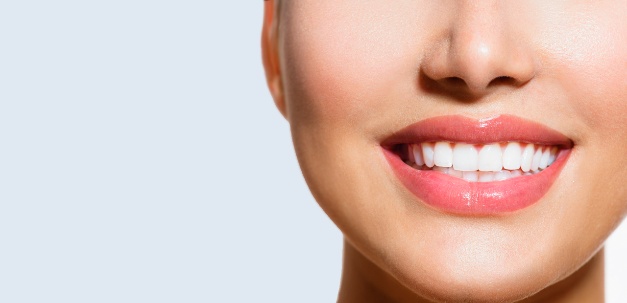 5 Things You Should Know About Affordable Dental Implants in Buford