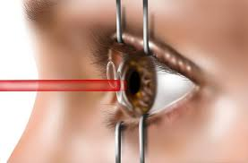 Leave a comment Training Requirements for LASIK Eye Surgeons